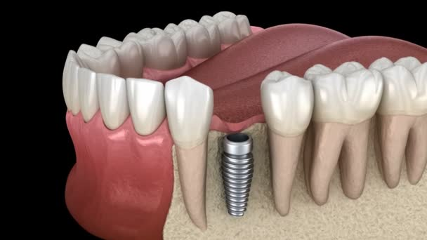 Premolar tooth recovery with implant. Medically accurate 3D animation of human teeth and dentures concept