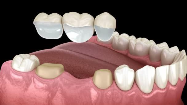 Zahnbrücke von 3 Zähnen über Molaren und Prämolaren. Medizinisch genaue 3D-Abbildung der Behandlung menschlicher Zähne