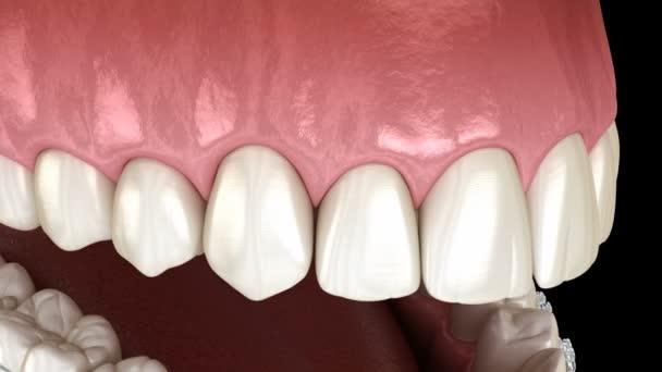 klare Zahnspangen, die andere Zähne einbauen. 3D-Animation