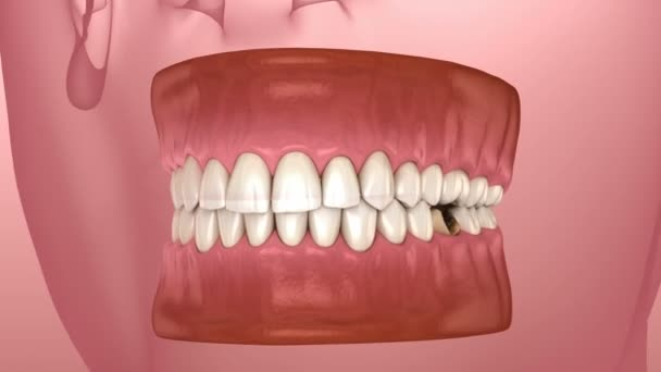 Losing molar tooth. 3D animation of human teeth and dentures concept
