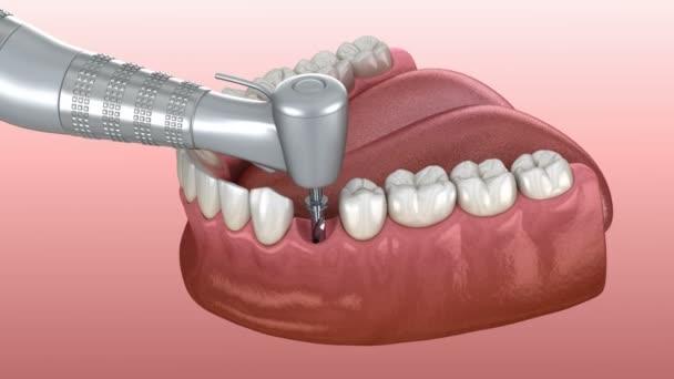 Podrobnosti procesu implantace: 3D animace vrtání, implantace, upevnění a fixace koruny