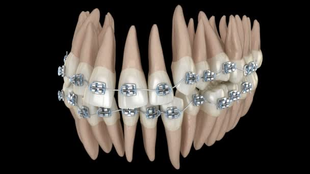Abnormal teeth position and correction with metal braces tretament. Medically accurate dental 3D animation