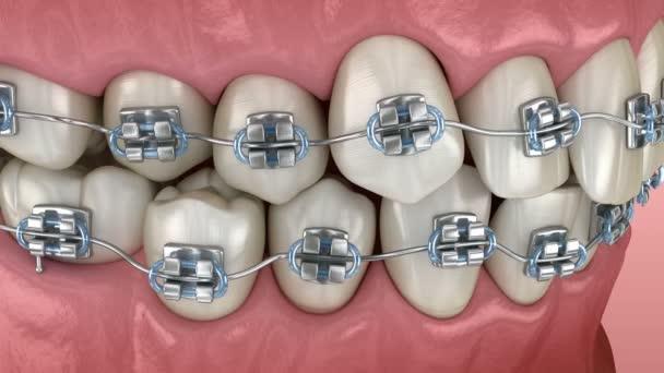 Anomale Zahnstellung und Korrektur mit Metallspangen Tretament. Medizinisch genaue zahnärztliche 3D-Animation
