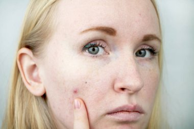 Young woman with acne. Applying ointment to the pimple. Beauty, skin care lifestyle concept.