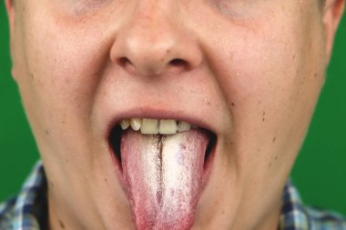 Man with halitosis for Candida albicans on tongue
