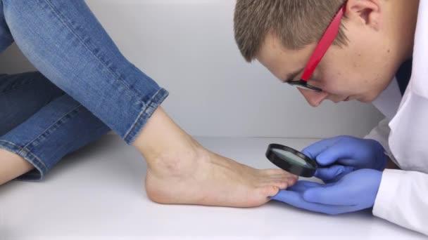Ein Trichologe untersucht mit einer Lupe einen Zehennagel, der vom Pilz befallen ist. Behandlung von Pilzerkrankungen und Unterstützung von Patienten mit Pilzerkrankungen.
