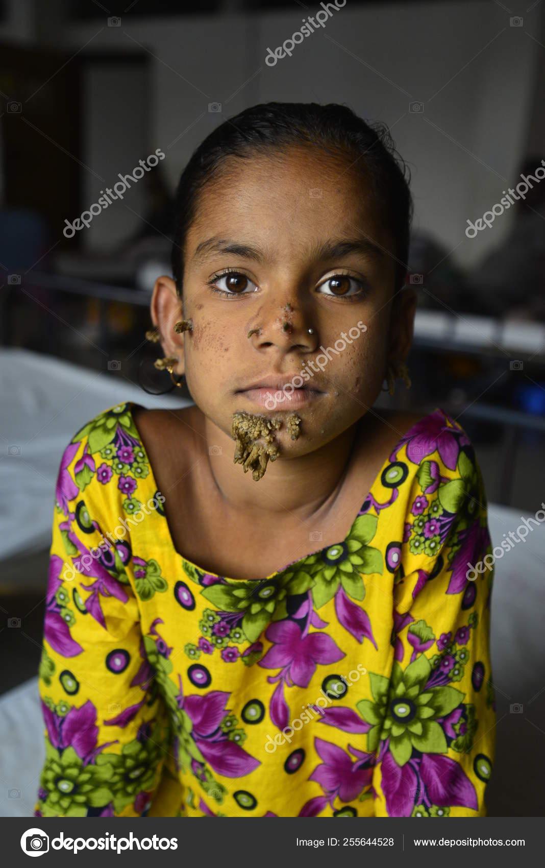 Bangladeshi Patient Sahana Khatun Poses Photograph Dhaka Medical