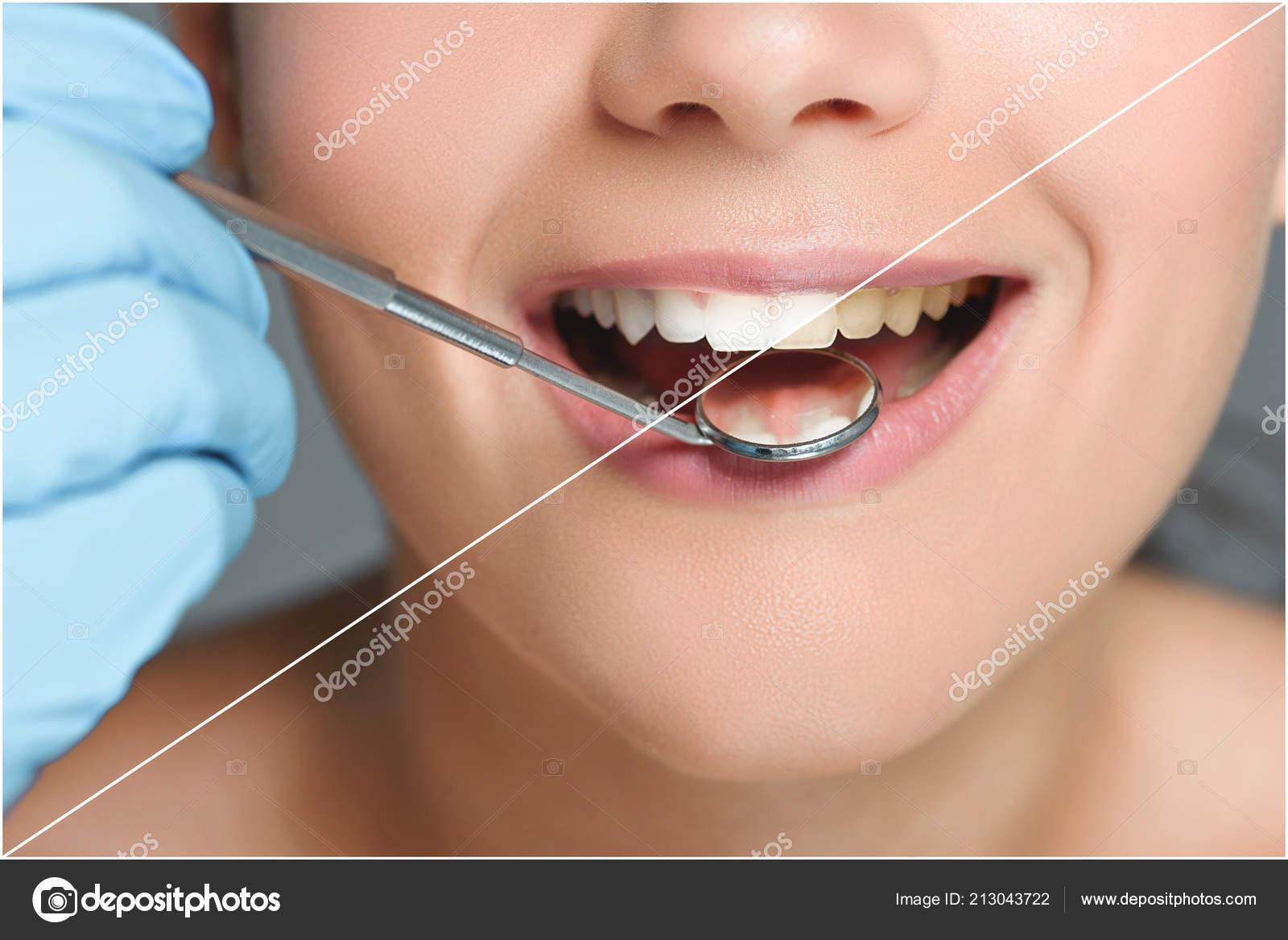 9759a5aa1 Vista Parcial Dentista Com Espelho Dental Verificando Dentes Mulher Feliz —  Fotografia de Stock