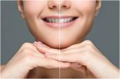 Fotografie Teilansicht der lächelnde Frau vor und nach der Zahnaufhellung isoliert auf grau