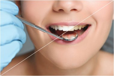 partial view of dentist with dental mirror checking teeth of happy woman, teeth whitening concept