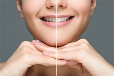partial view of smiling woman before and after teeth whitening isolated on grey
