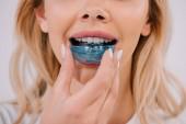 Fotografie Teilansicht der Frau setzen auf kieferorthopädische Trainer Zahnspangen isoliert auf weiss