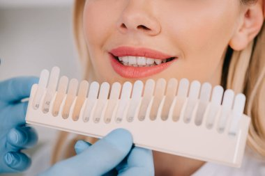 cropped view of male dentist matching teeth color of woman with palette in clinic, teeth whitening concept