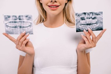 Cropped view of smiling woman in t-shirt holding teeth x-rays isolated on white stock vector