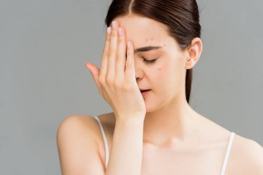 young woman with acne covering face with hand isolated on grey