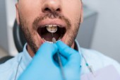 cropped view of dentist holding dental mirror in mouth of patient
