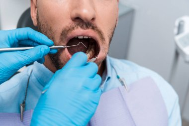 cropped view of dentist holding dental instruments in mouth of bearded patient in clinic
