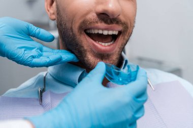 selective focus of dentist holding retainer near patient with opened mouth