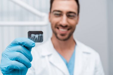 selective focus of x-ray in hand of cheerful dentist in dental clinic