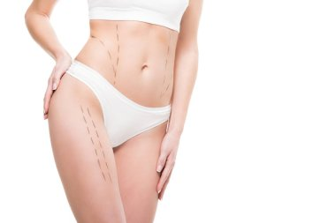 cropped shot of woman in underwear with correction marks on body isolated on white