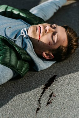 close-up view of injured young man on road after traffic accident