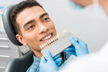 close up of handsome african american man smiling near teeth color palette before whitening procedure