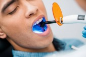 Fotografie close up of african american man during whitening procedure