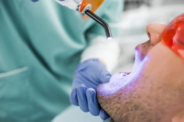 close up of dentist making bleaching procedure to patient