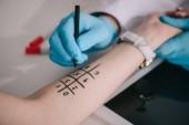 Fotografia ritagliate la vista del medico in guanti in lattice che tiene pennarello vicino contrassegnata mano femminile