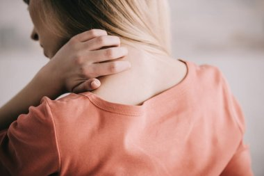 back view of woman scratching neck while having allergy