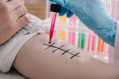 cropped view of doctor in holding pipette with red liquid near male hand while making allergy test in laboratory