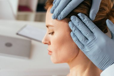 cropped view of dermatologist in latex gloves examining hair of attractive patient in clinic