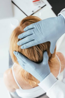 overhead view of dermatologist in latex gloves examining hair of patient in clinic