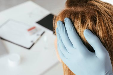 cropped view of dermatologist in blue latex glove examining hair of patient in clinic
