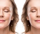 Collage einer reifen Frau mit kosmetischer Creme im Gesicht vor und nach der Retusche isoliert auf Weiß