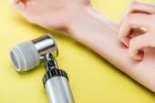abgeschnittene Ansicht der juckenden Hand einer Frau in der Nähe des Dermatoskops auf gelb