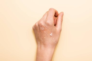 Cropped view of female hand with dehydrated, exfoliated skin on beige stock vector