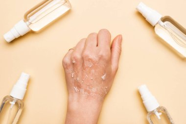 Cropped view of female hand with dry, exfoliated skin near spray bottles with antiseptic on beige stock vector