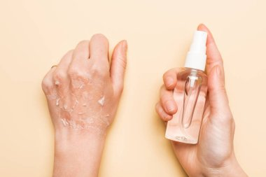 Partial view of woman holding antiseptic spray near hand with dead, exfoliated skin on beige stock vector