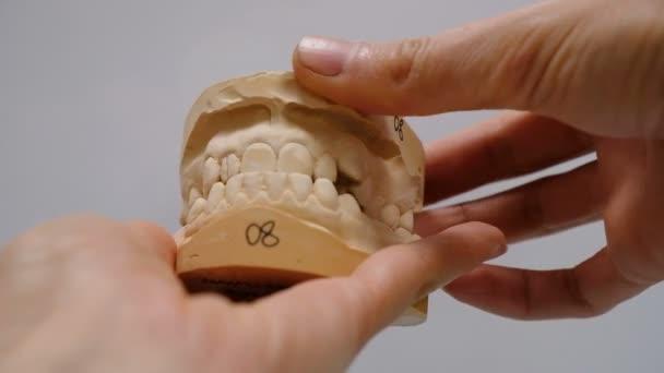 Gips-Modell der Zähne vor der Montage des Halterungssystems. Kiefer öffnen sich lustig und schließen sich in den Händen eines Arztes, der Kauapparat einer Person