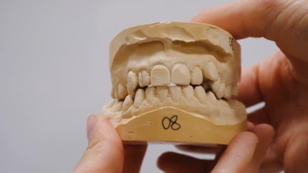 Sádrovce modelu zubů před instalací systém držáků. Doktor se zavře a otevře Sádrové odlitky čelisti, žvýkací aparát osoby