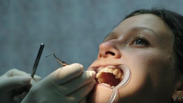 Frau ist Behandlung von Zähnen mit einer kieferorthopädischen Fixateur im Mund Nahaufnahme. Besuch beim Zahnarzt