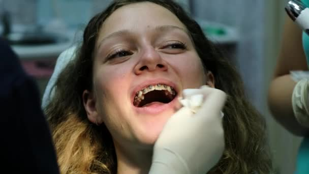 Metal braces close-up, visit to the dentist. Orthodontist completed the installation