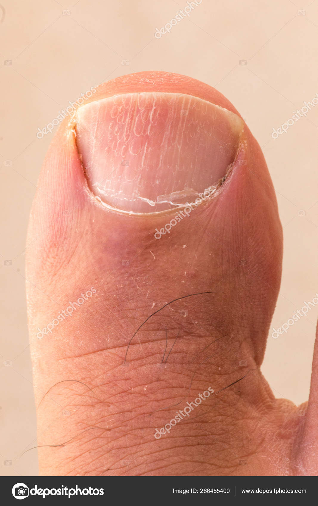 Big Toe Ingrown Toenail Scaly Dry Skin