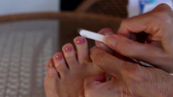 Frau wendet Anti-Pilz-Medikament auf infizierte Großzehe an