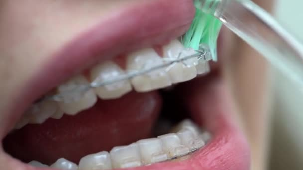 Reinigung der Zahnklammern in der Zahnklinik