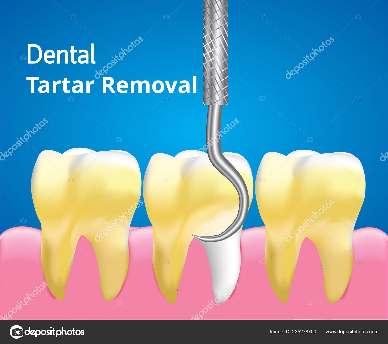 Scaling Tartar Cleaning Teeth Dental Care Concept Realistic Design
