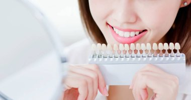 close up of beauty woman smile to you with health teeth and color samples tool for bleaching treatment