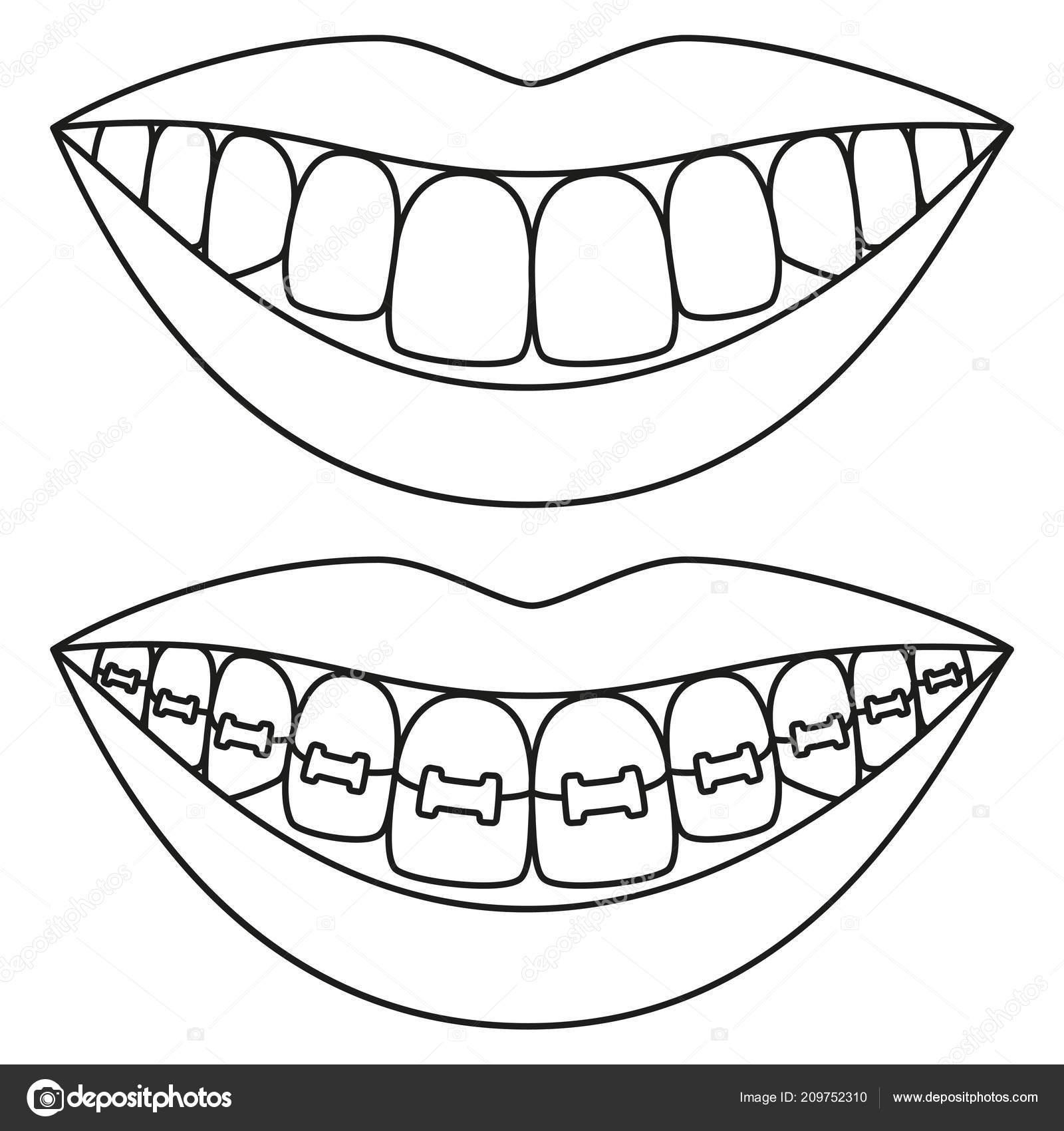 Hat Sanat Siyah Ve Beyaz Dişler Kavramı Hizalama Stok Vektör