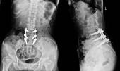 RTG bederní páteře Ukázat post operace laminektomie s desky šroub